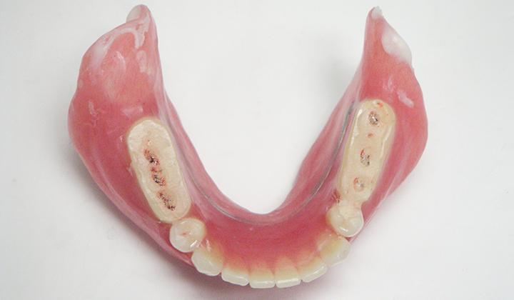 リハビリテーション用の入れ歯