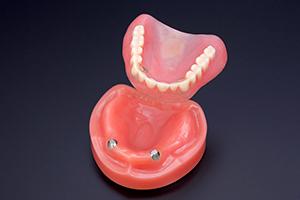 「磁石+入れ歯」の磁性アタッチメント義歯